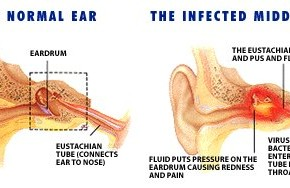 normal-ear-infected-ear