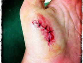 stitches2